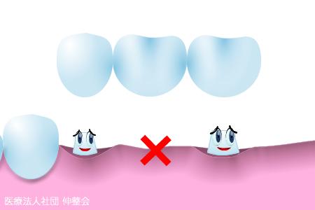 歯のブリッジ治療が身体に及ぼす影響|歯科・歯医者|東京