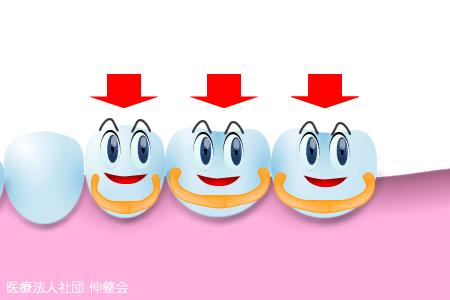 【図解】歯のブリッジ治療が身体に及ぼす影響