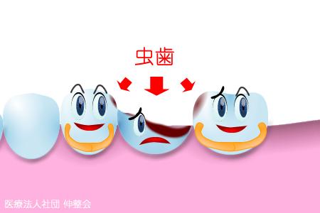 【図解】虫歯のブリッジ治療で見落としがちな注意すべき点