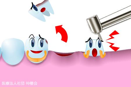 虫歯ブリッジ治療|歯科・歯医者|東京|高木歯科医院