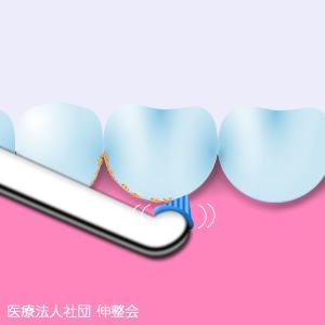 プロによる歯のお手入れ PMTC