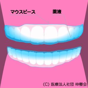 究極の虫歯・歯周病予防 3DS