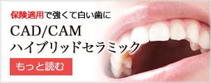 ハイブリッドセラミック|高木歯科医院|西早稲田にある相談できる歯医者さん