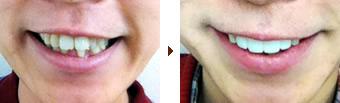 矯正器具を使わない補綴物による歯並び改善(症例)