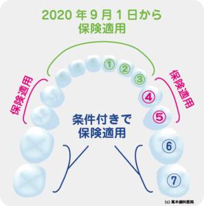 CAD/CAM冠(キャドカム冠/保険適用の白い歯)-東京